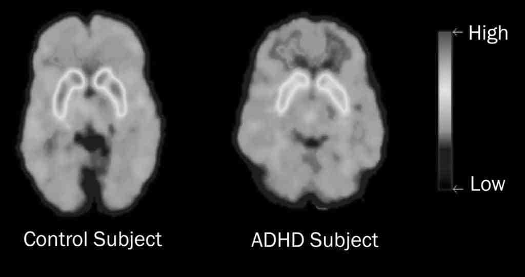 adhd-dopamin - lo que es la dopamina