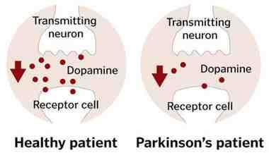 enfermedad de dopamina parkinsons - lo que es la dopamina